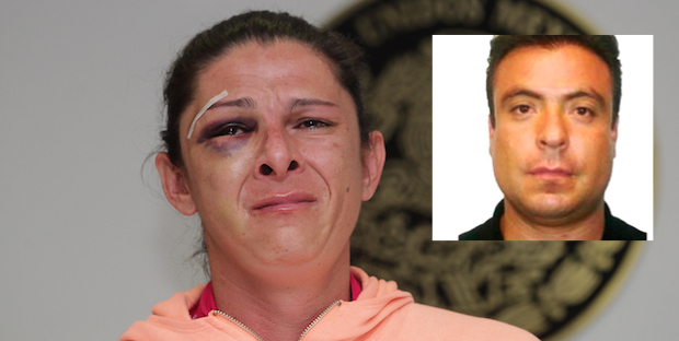 Ana Guevara golpeó primero, por la ropa pensamos que era hombre: esposa de agresor