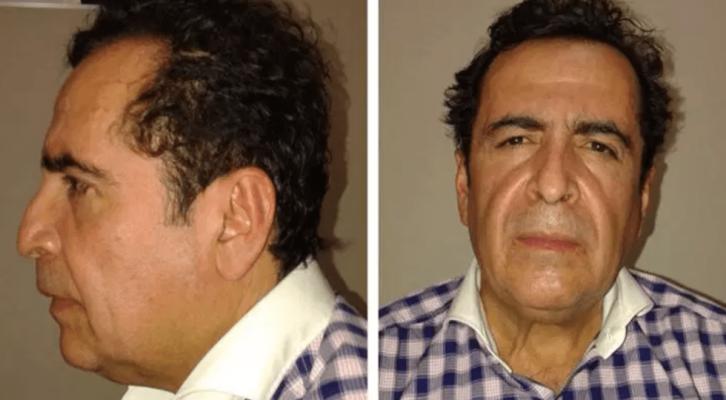 MUERE HÉCTOR BELTRÁN LEYVA DE INFARTO